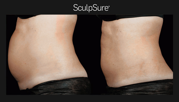SculpSure before and after photo